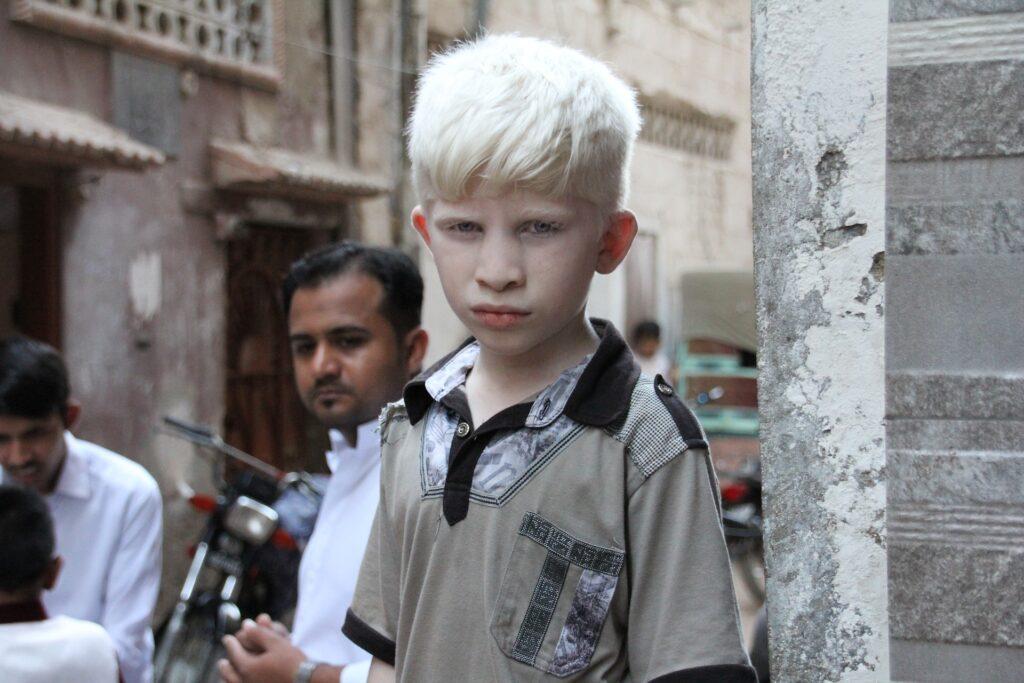 albino dječak